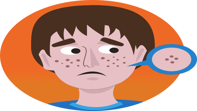 How to get pimple clear face? do home Remedies really work ?